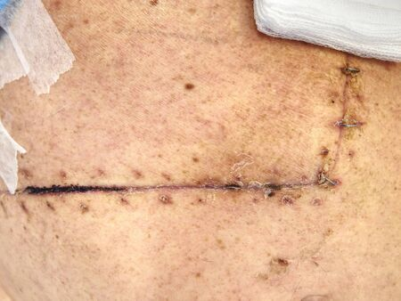 Belly wound with surgical silver stitch. Patient after intestinal cancer and gallbladder removal.