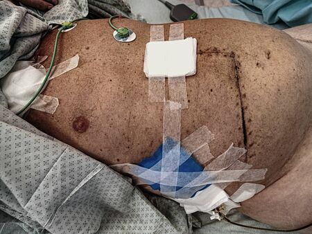 The patient shows a fresh, large scar after bowel and liver surgery and plastic tubing to remove lime and pus.