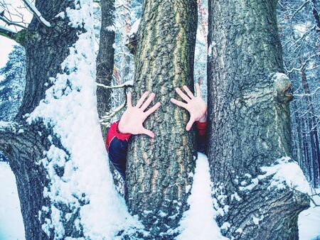 Hands with long frozen fingers touch tree bark. Detail of male hands with naked wrists hold trunk in forest.