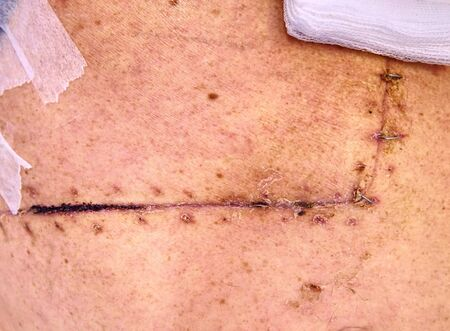 Fresh postoperative scar sewn with silver thread. Patient after intestinal and gall bladder cancer.