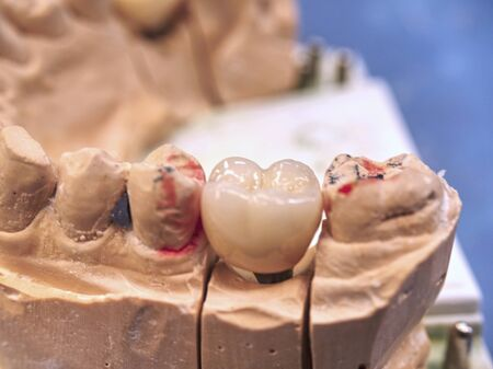Dental implant model with pin and dental implant. Dental casting gypsum model of human jaws. Crooked teeth distal bite.