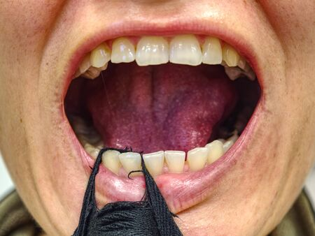 Woman open mouth with strip of textile and showed her crooked and rotten teeth. Female open mouth crooked yellow teeth dry lip