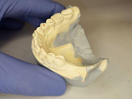 Dental gypsum mold with crooked teeth. Dentist holding Dental Gypsum Models, Dental Concept