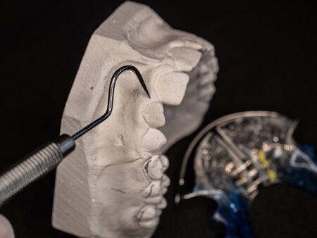 Dental gypsum models and dental brace. Dental Blue Removable Brace or Retainer for upper platal teeth