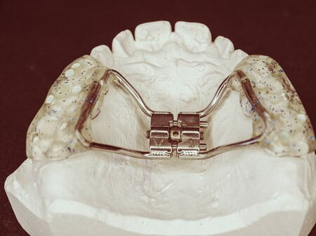 Dental upper jaw bracket braces model on dentist table. Reparation of jaw defects of young patients. Фото со стока