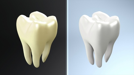 carious:  The health of tooth and bad tooth comparison for tooth care concept