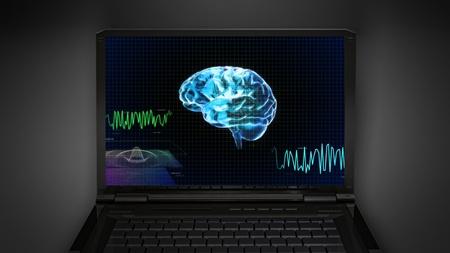 brain work: brain wave is display on laptop screen
