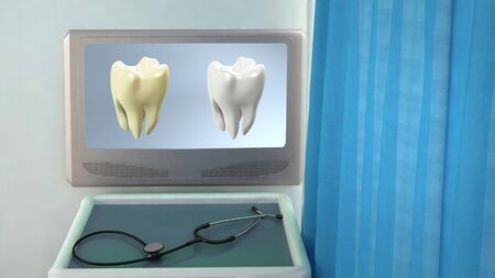 teeth screen in medical room concept 3d render photo