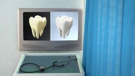 phosphorus: teeth screen in medical room concept 3d render Stock Photo