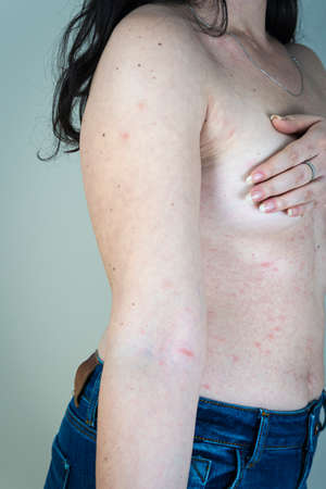 Women with symptoms of itchy urticaria or allergic reaction on the skin. Red rash on the females body. Concepts of allergy, skin diseases and health care.
