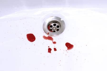 Blood stains in the bathroom sink, bleeding, criminal and suicide concept. Standard-Bild