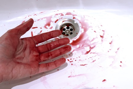 Bloody hand and blood stains in the bathroom sink, bleeding, criminal and suicide concept.