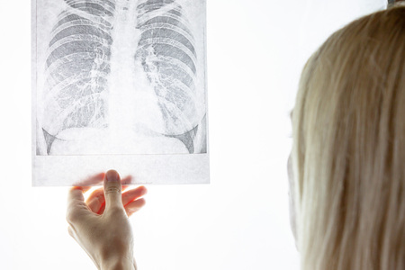 Female doctor examining fluorography, x-ray. Lung desease and treatment concept.