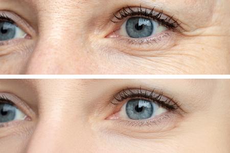 Rostro de mujer, arrugas en los ojos antes y después del tratamiento: el resultado de procedimientos cosmetológicos rejuvenecedores de biorevitalización, eliminación de manchas de botox y pigmento. Foto de archivo