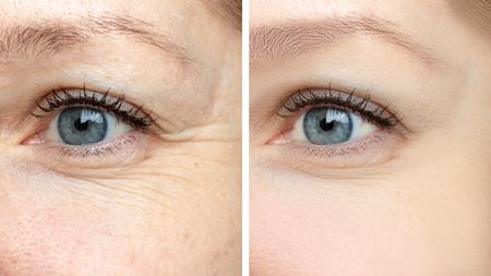 Kobieca twarz, zmarszczki wokół oczu przed i po zabiegu - efekt odmładzających zabiegów kosmetologicznych polegających na biorewitalizacji, usuwaniu przebarwień i botoksu.