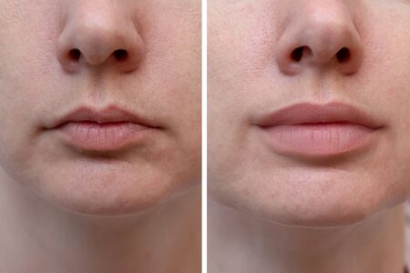 Female lips before and after augmentation, the result of using hyaluronic filler.