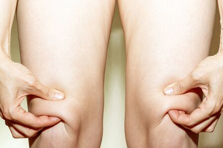 Knee of women worry about fat skin and holdin it by hands on light background. Banco de Imagens