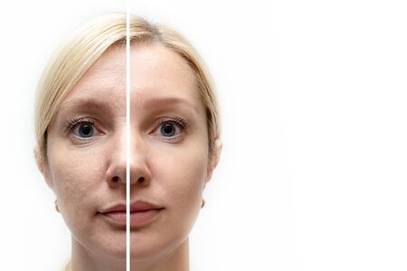 Woman face with wrinkles and age change before and after treatment - the result of rejuvenating cosmetological procedures of biorevitalization, face lifting and pigment spots removal, copy space.