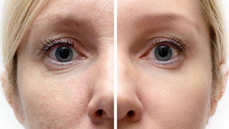 Frauengesicht mit Falten und Altersveränderungen vor und nach der Behandlung - das Ergebnis verjüngender kosmetischer Verfahren zur Biorevitalisierung, Gesichtsstraffung und Entfernung von Pigmentflecken.