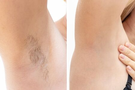 Woman underarms, armpit before and after depilation, laser waxing and sugaring.