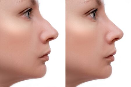 Young woman before and after rhinoplasty and nose hump, shape correction on white background, cosmetology and aesthetic surgery concept. Reklamní fotografie - 141739931