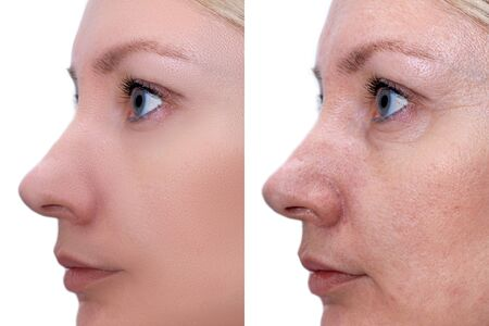 Woman face, before and after treatment - the result of rejuvenating cosmetological procedures of biorevitalization, face lifting and pigment spots, pigmentation removal. Reklamní fotografie - 141821617