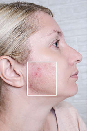 Young woman before and after anti acne treatment, skincare and dermatology concept, skin imperfections close up 版權商用圖片