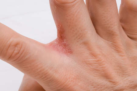 Hand with interdigital dermatitis, dyshidrotic eczema on hand close up