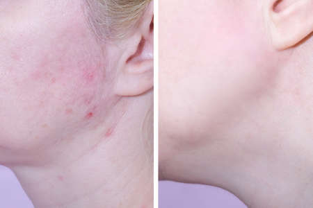 Young woman before and after anti acne treatment, skincare and dermatology concept.