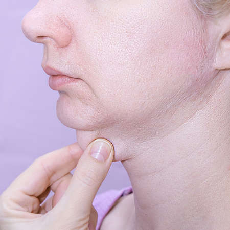 A profile of a european woman pinching her double chin with fingers against pink background.