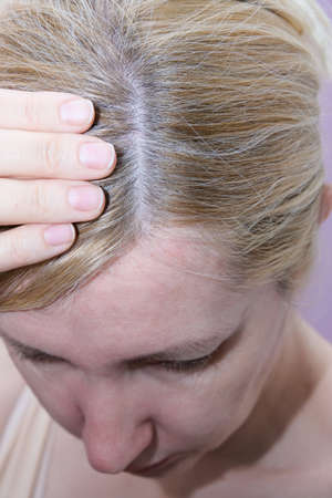 A blond woman inspecting her hair, hair loss, alopecia and hair treatment concept.