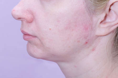A caucasian woman with acne skin, red pimples on a jaw close up