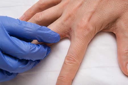 A doctor dermatologist examines patients hand with interdigital dermatitis, dyshidrotic eczema on hand