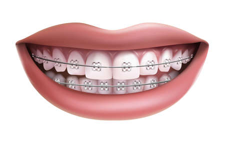 Vector isolated on white background, smile with white teeth and braces.
