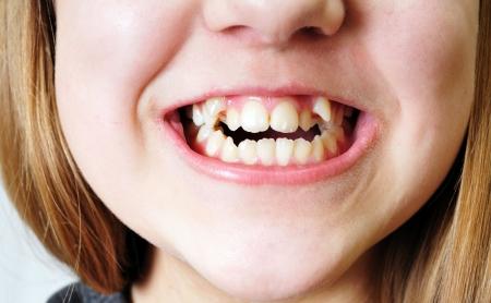 rotten teeth: close up - bad  crooked teeth of girl Stock Photo