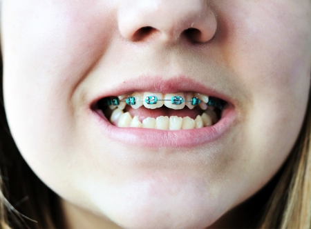 crooked teeth: braces on bad crooked teeth  Stock Photo