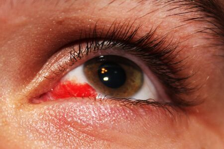 Busted Blood Vein In The Eye