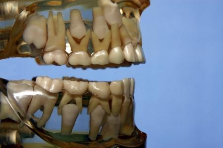 milk tooth: primary teeth Stock Photo