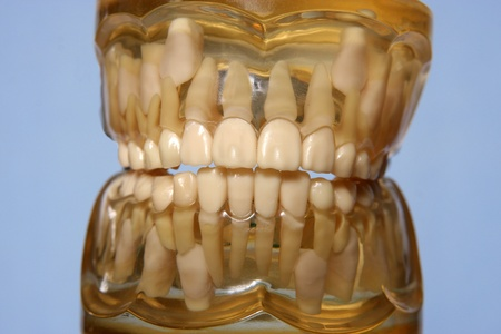 Tooth model photo