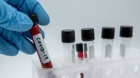 Positive COVID-19 test and laboratory sample of blood testing for diagnosis new Corona virus infection. Pandemic infectious concept