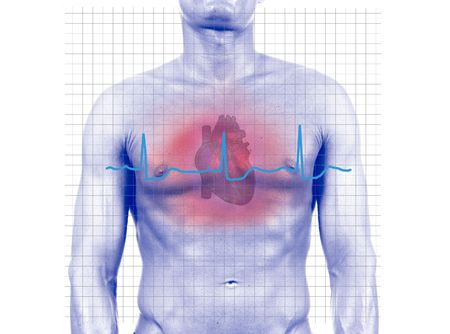 unhealth: Heart Attack - isolated digital composition- isolated digital composition