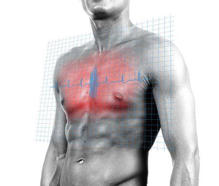 Ataque cardíaco - aislados composición digital  Foto de archivo - 539299