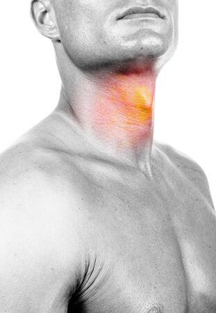 quemadura: garganta dolorida - aislada en la composici�n digital blanca Foto de archivo