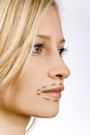face of young woman prepared to plastic surgery (grey background) Stock Photo