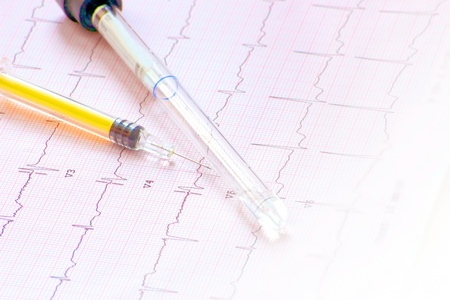ecg examination completed with specific chemical blood analysis Stock Photo - 17648054