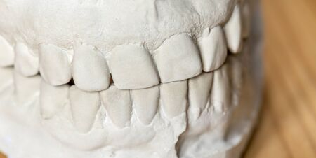 Close-up of a white teeth dental impression smile on wooden background, web banner
