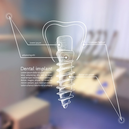 Vector illustration. Background - Blurred photo a dentist with a sketch - dental implants