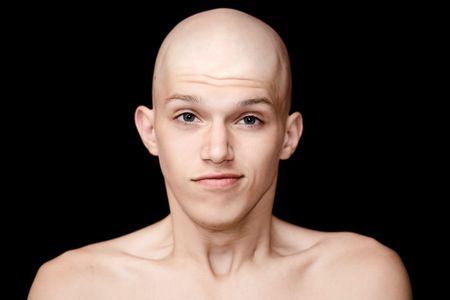 homme chauve: l'homme chauve