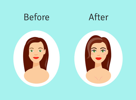 plastic surgery: Plastic surgery before and after illustration. Beautiful girl after plastic surgery procedures in cartoon style.