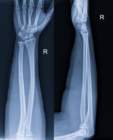x rays negative: Arm x-ray